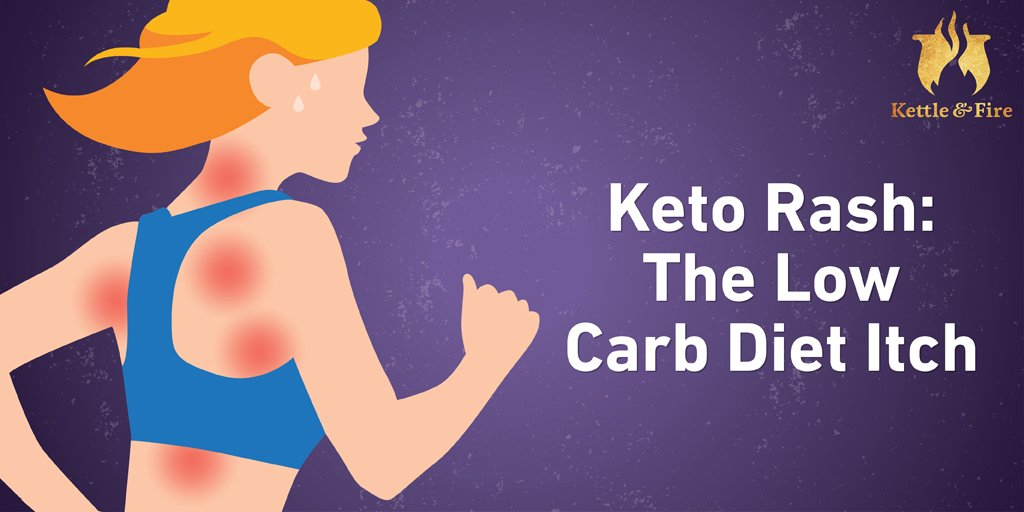 Low-Carb Diet Side Effects