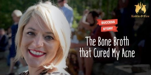 The Bone Broth that Cured My Acne