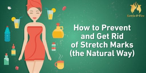 How to Prevent and Get Rid of Stretch Marks (the Natural Way)